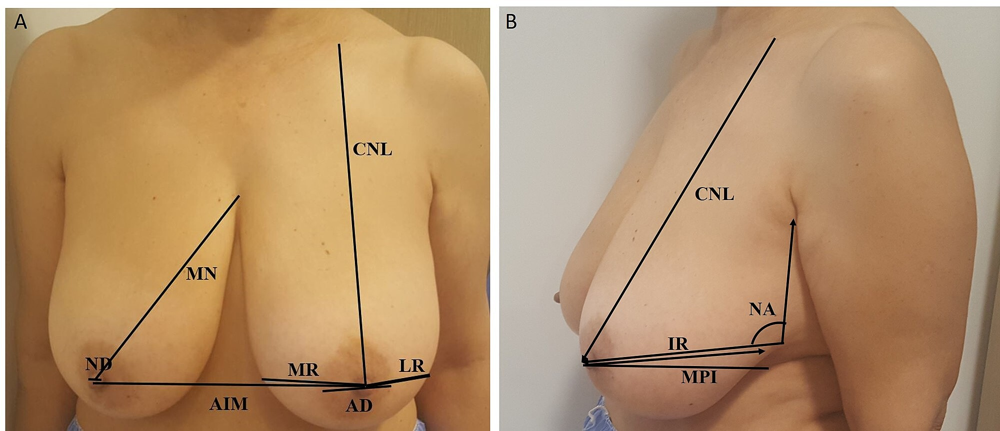 Cureus Investigation Of The Anthropometric Changes In Breast