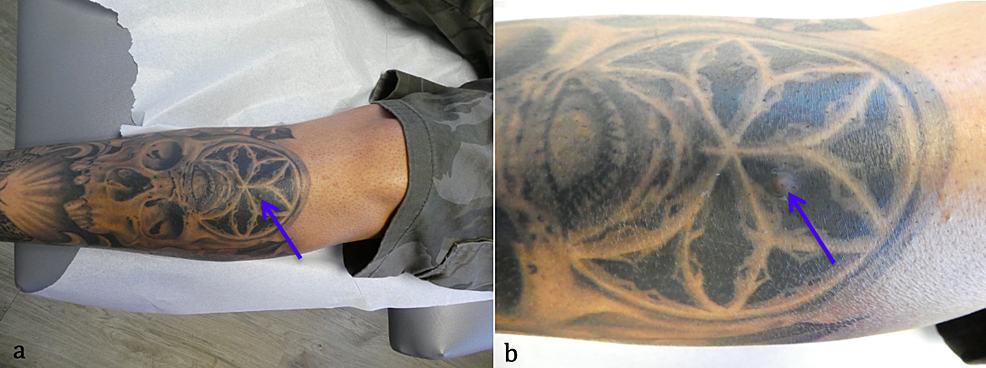 Osteoma-cutis-in-a-man-with-a-leg-tattoo