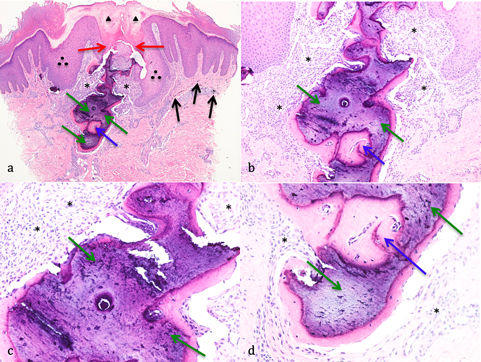 Pathology-features-of-perforating-osteoma-cutis