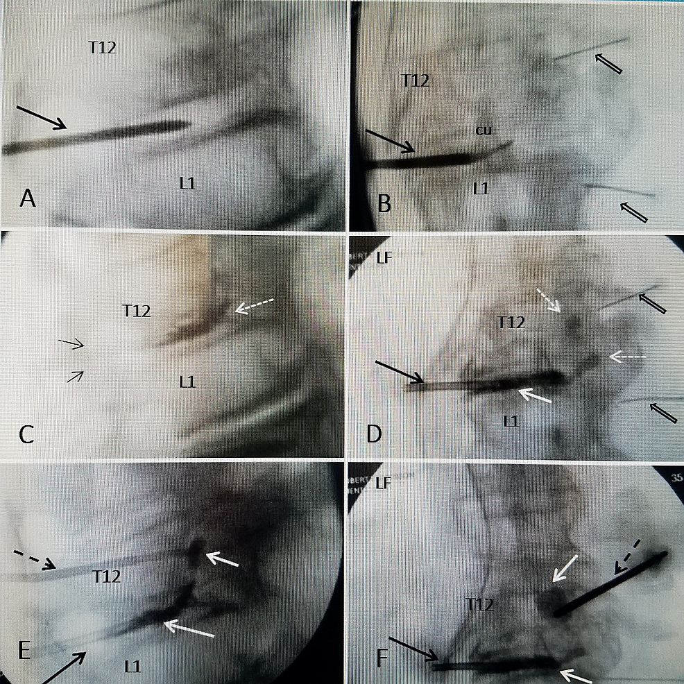 Sequential-intra-operative-fluoroscopic-films