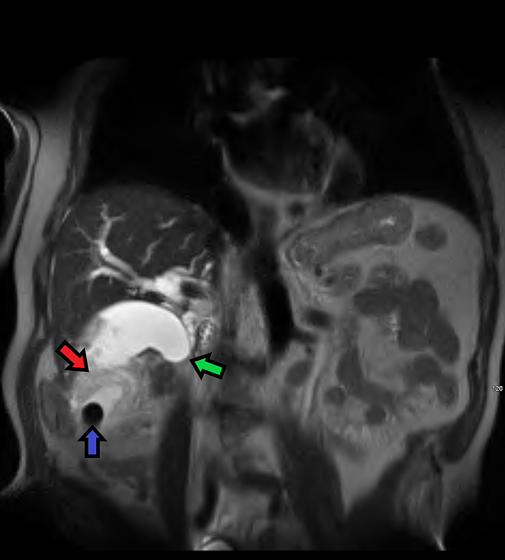 Coronal-MRI-T2-HASTE-weighted-image-demonstrating-a-large-mass-(red-arrow)-surrounding-a-gallstone-(blue-arrow)-in-the-distal-portion-of-the-gallbladder-fundus.--There-is-sharp-tapering-in-the-mid-to-distal-common-bile-duct-(green-arrow)-indicating-obstruction-secondary-to-infiltration-by-the-mass