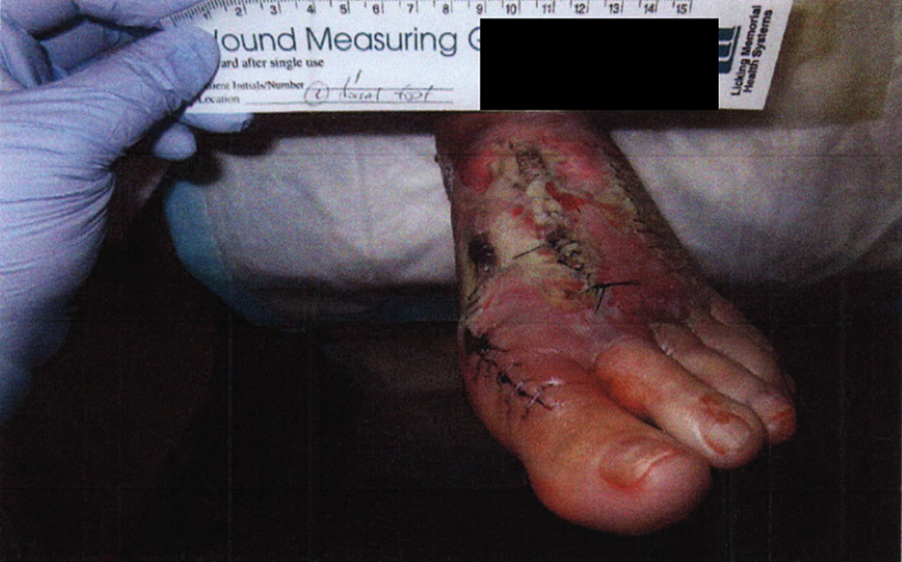 Gross-image-of-initial-presentation-showing-swelling-blisters-and-wound-dehiscence