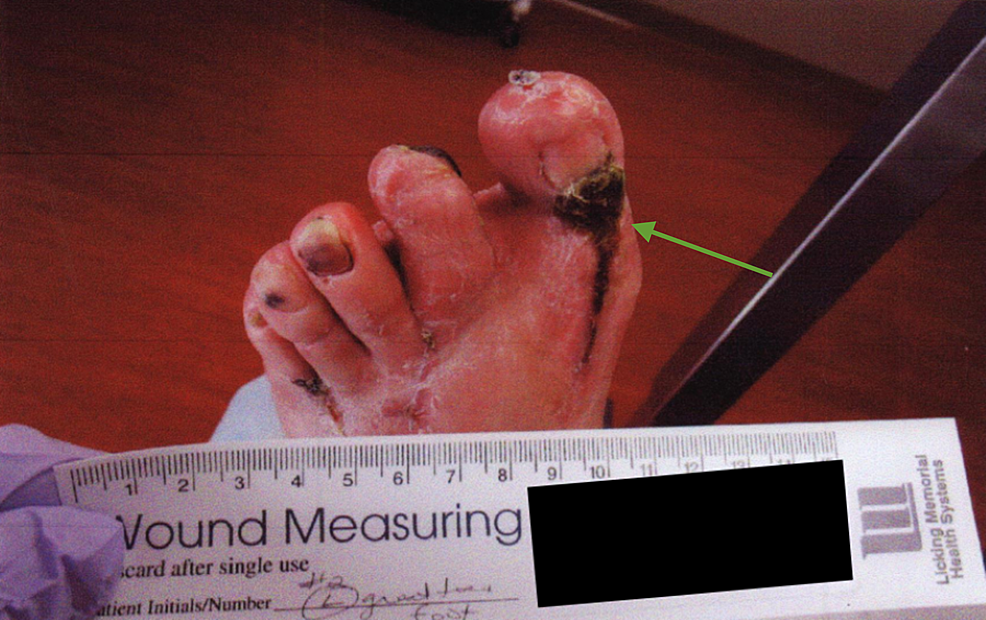 Gross-image-of-the-initial-presentation-showing-eschar-on-the-dorsal-left-foot-incision