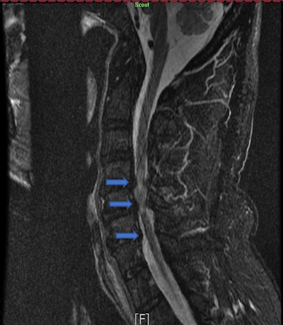 STIR-image-of-the-cervical-spine