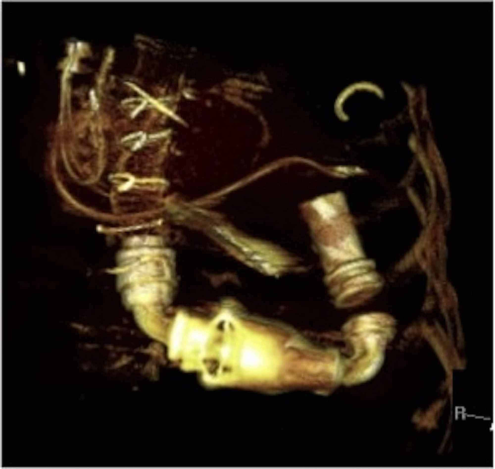Volume-rendered-3D-computed-tomography-(CT)-image-showing-parts-of-Heartmate-II-left-ventricular-assist-device-(LVAD)-as-described-in-Figure-1.