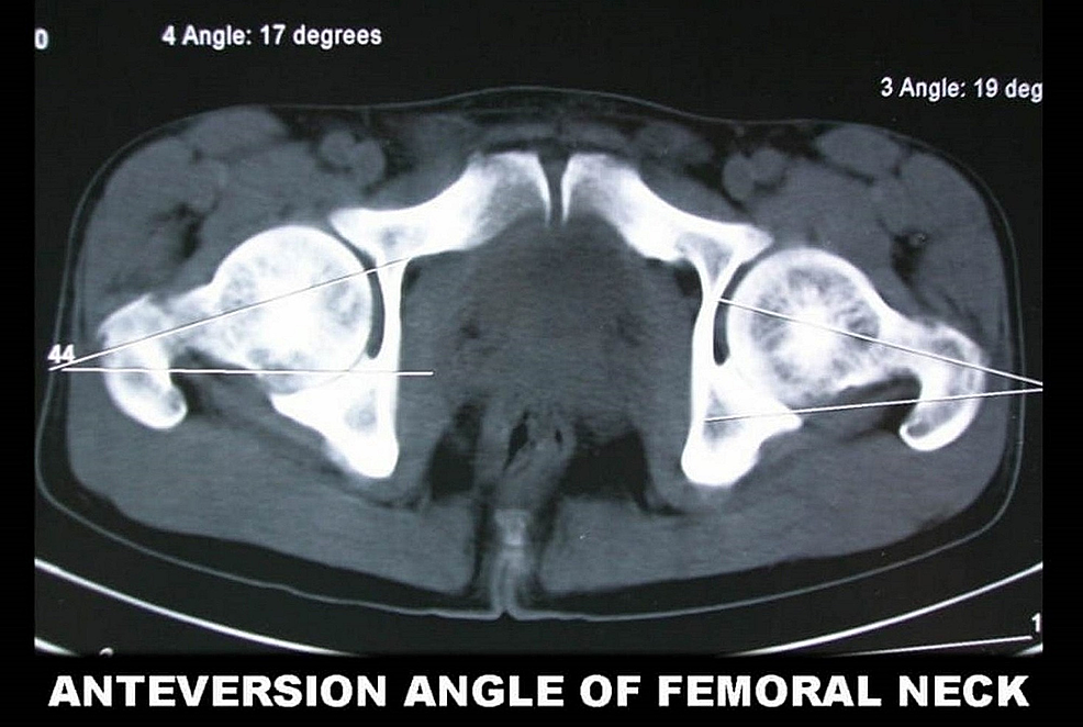 Anteversion-angle-of-femoral-axis-calculated-from-computed-tomography