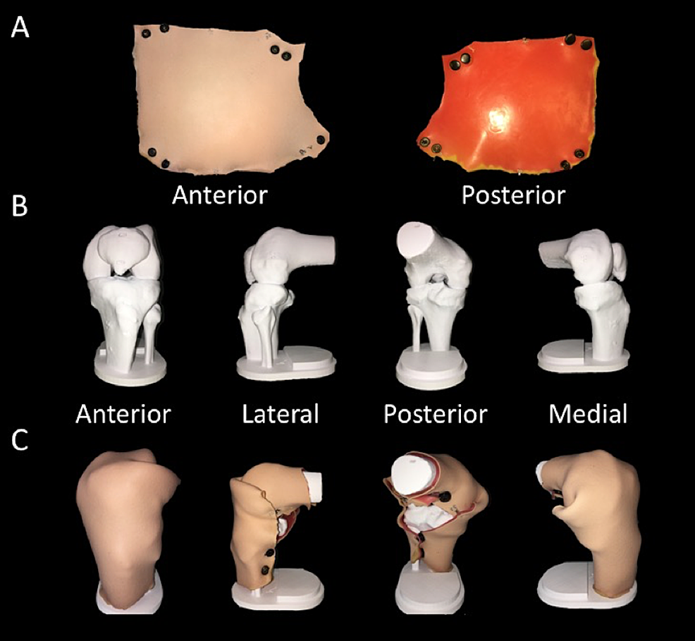 First-prototype-of-knee-joint-model.-A)-Anterior-and-posterior-views-of-outer-skin.-B)-Bony-frame-of-knee-joint-model.-C)-Assembled-knee-joint-model.-
