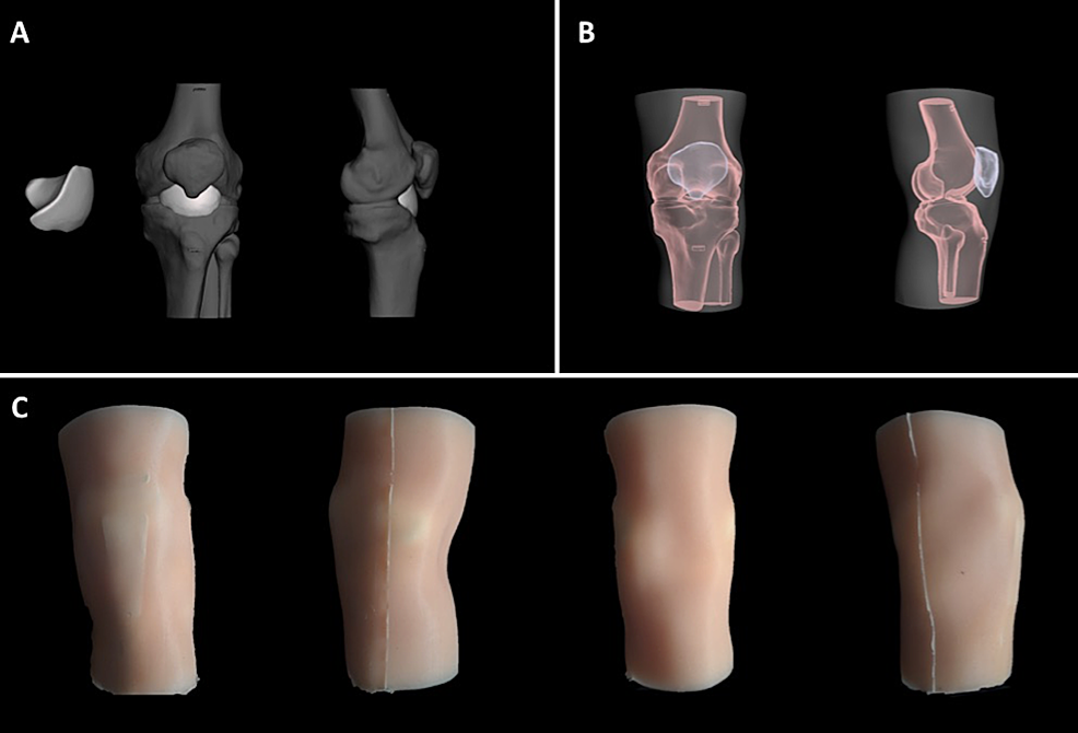 Steps-in-the-design-of-the-second-prototype-of-knee-joint-model-that-include-changes-based-on-input-from-CLSC-staff.-A)-Step-1:-Computer-model-of-new-internal-synovial-fluid-vestibule.-B)-Step-2:-Computer-model-of-bony-frame-within-new-molded-gel-sleeve.-C)-Step-3:-Full-surface-view-of-the-model.