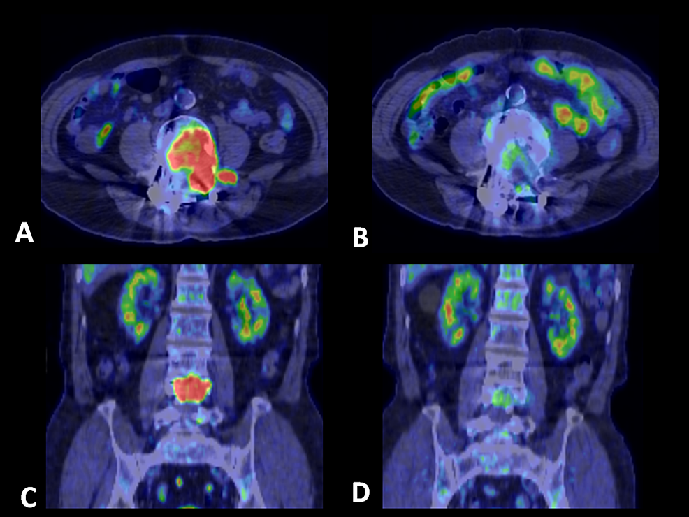 Positron-emission-tomography/CT-scan-of-lumbar-metastasis-in-a-80-year-old-male.