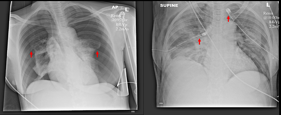 Anteroposterior-chest-radiographs-pre--and-post-drain-insertion-with-lung-edges-and-drain-tips-highlighted.