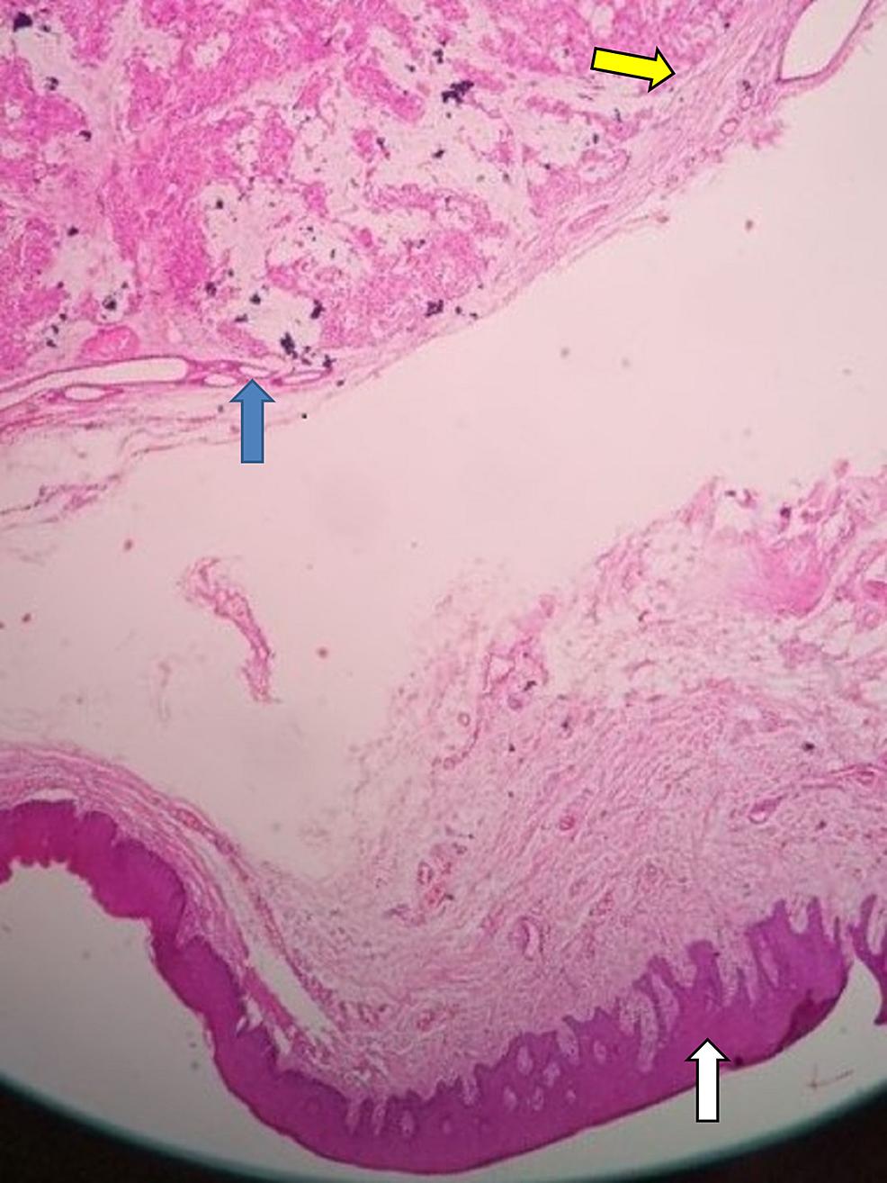 Pleomorphic-adenoma,-histopathological-examination.-Blue-arrow-denotes-islands-of-myoepithelial-cells;-yellow-arrow-denotes-mesenchymal-connective-tissue-layers;-white-arrow-denotes-parakeratinized-stratified-squamous-epithelium.