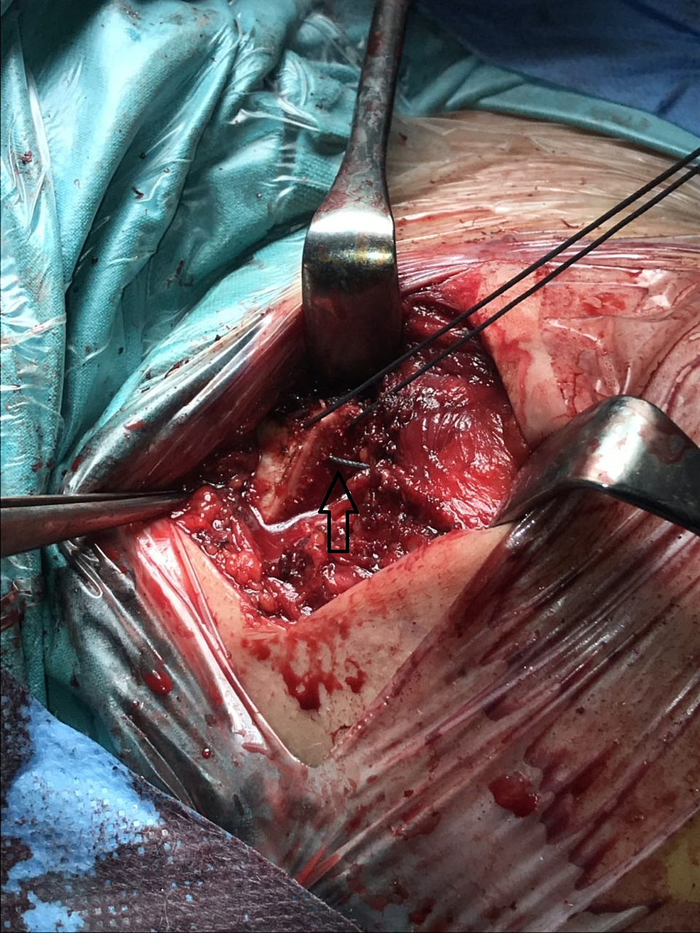 Transosseous-sutures-for-the-reattachment-of-the-anterior-deltoid-muscle-to-the-clavicle-bone.