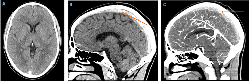 Computed-tomography-(CT)-of-the-head-without-contrast-(axial-and-sagittal-views)-and-CT-angiogram-of-the-head