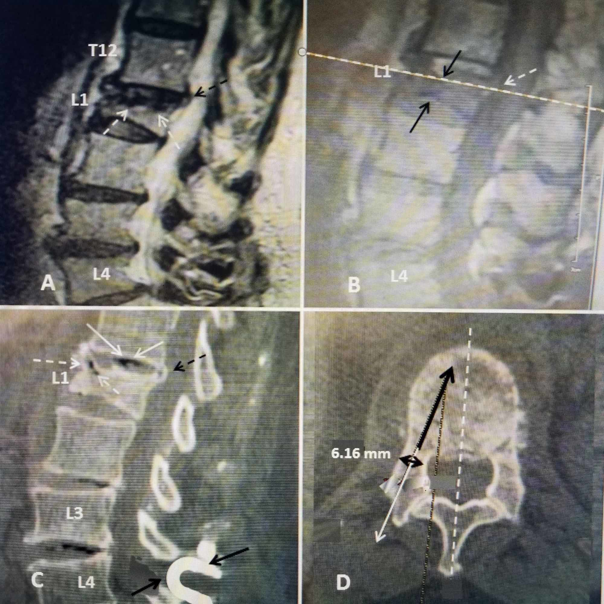 Cureus Treatment Of A High Risk Thoracolumbar Compression Fracture Using Bilateral Expandable Titanium Spinejack Implants