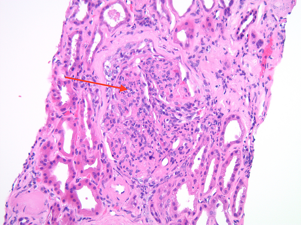 Light-microscopy-of-renal-biopsy-demonstrating-diffuse-endocapillary-proliferative-and-exudative-glomerulonephritis-and-mesangial-cell-proliferation-(as-indicated-by-the-red-arrow)