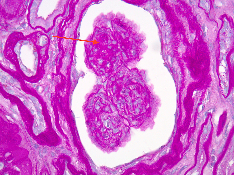 Light-microscopy-of-renal-biopsy-demonstrating-nodular-sclerosis-with-prominent-hyalinization-(as-indicated-by-the-red-arrow)-present-in-glomerular-capillary-loops