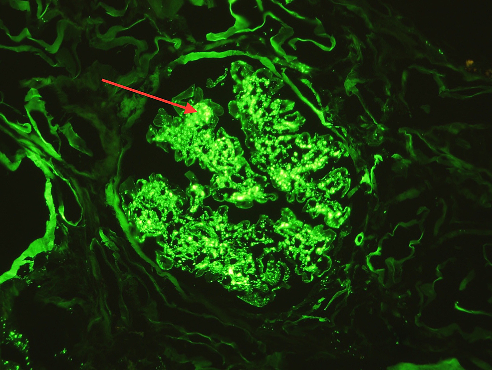 Immunofluorescence-reveals-significant-complement-C3-positive-glomerular-mesangial-staining-(as-indicated-by-the-red-arrow)