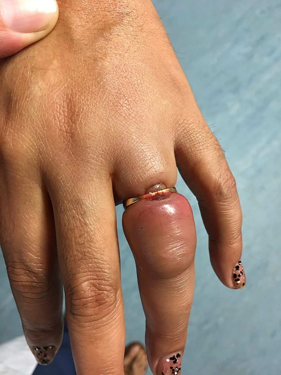 Swollen-and-painful-left-ring-finger-on-presentation-and-prior-to-ring-removal