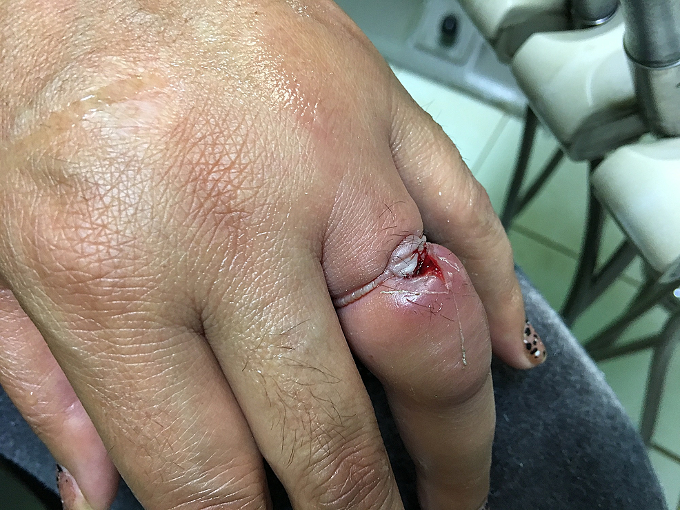 Left-ring-finger-following-ring-tourniquet-resolution-and-wound-irrigation