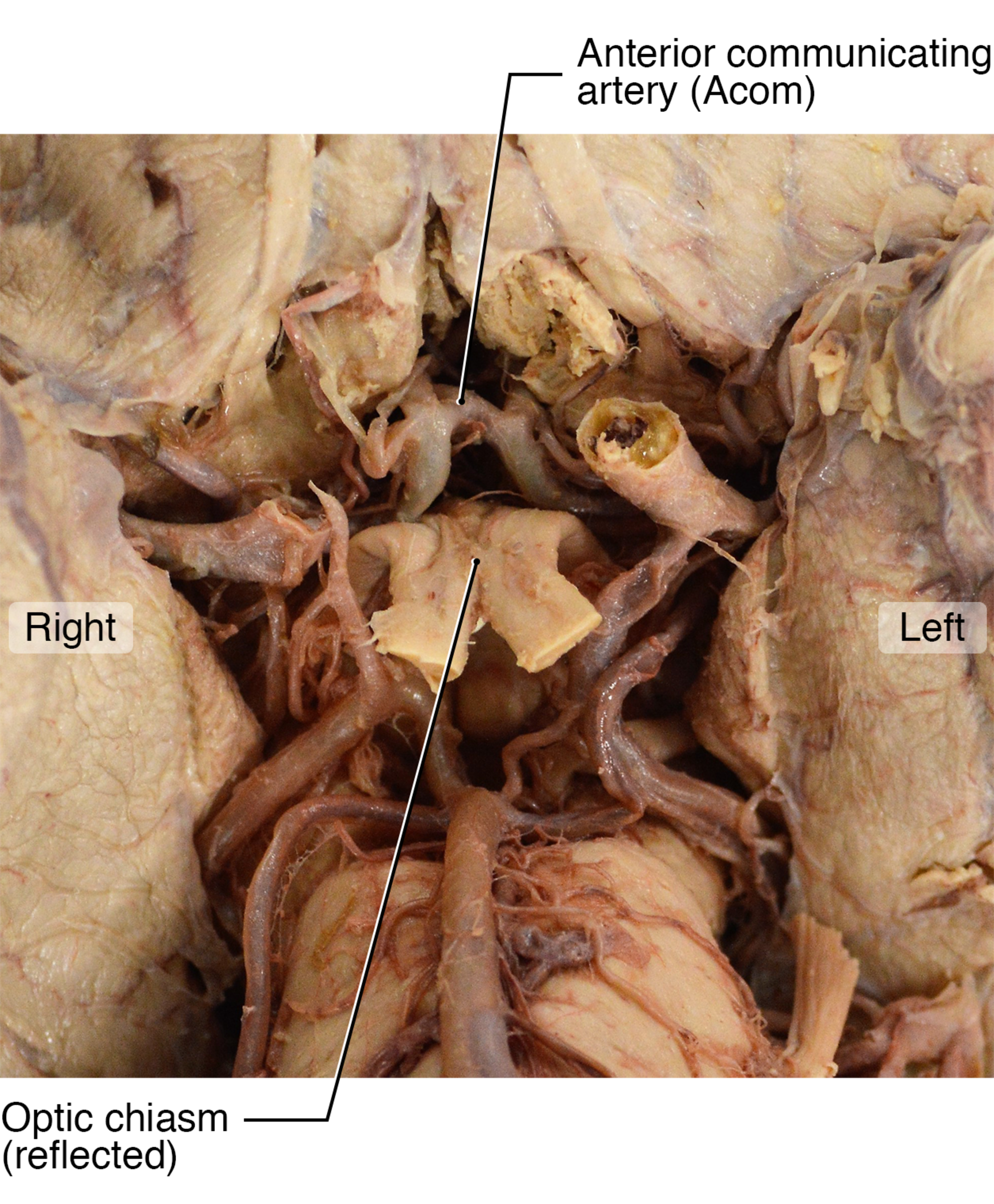 Anterior-Communicating-Artery