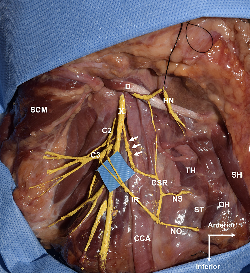 Lateral-view-of-the-right-neck.-Note-the-branch-from-the-vagus-nerve-(arrows)-joins-the-branch-from-the-hypoglossal-nerve-to-form-the-common-superior-root