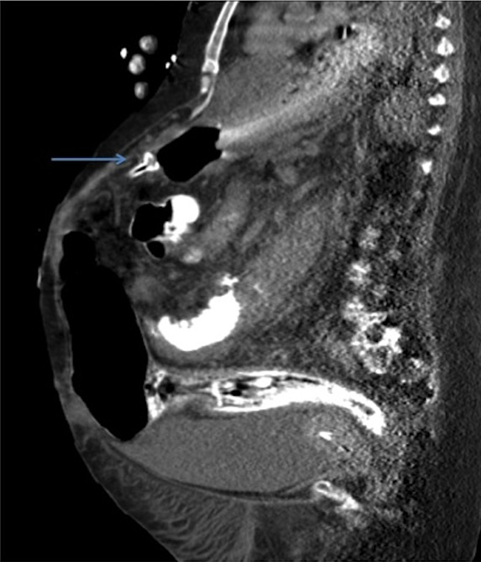 The-erosion-of-the-gastrostomy-tube-through-the-stomach-wall-depicted-on-coronal-view-of-a-computed-tomography-(CT)-scan-of-the-abdomen