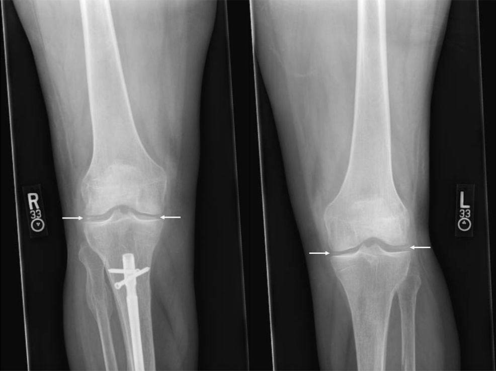 Chondrocalcinosis-of-bilateral-knees