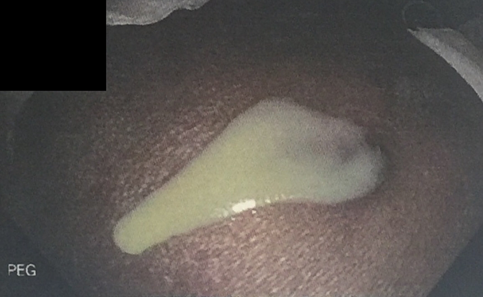 Purulent-discharge-from-PEG-tube-insertion-site