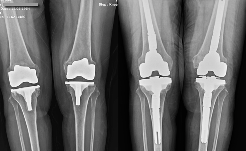 Case-2-Preoperative-and-Postoperative-Knee-X-Ray