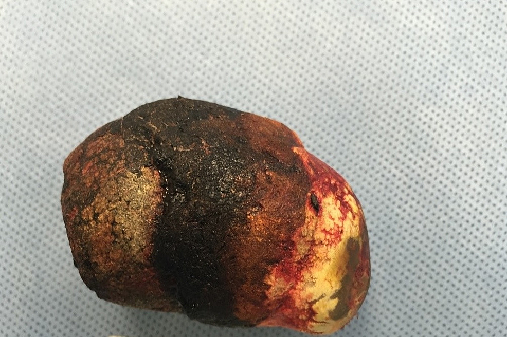 Gallstone-removed-by-duodenotomy