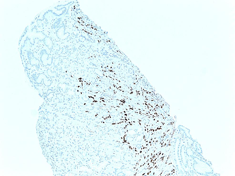 Immunohistochemical-examination-of-the-biopsy-of-the-adenocarcinoma-of-the-lobular-breast,-demonstrating-ER-positivity.