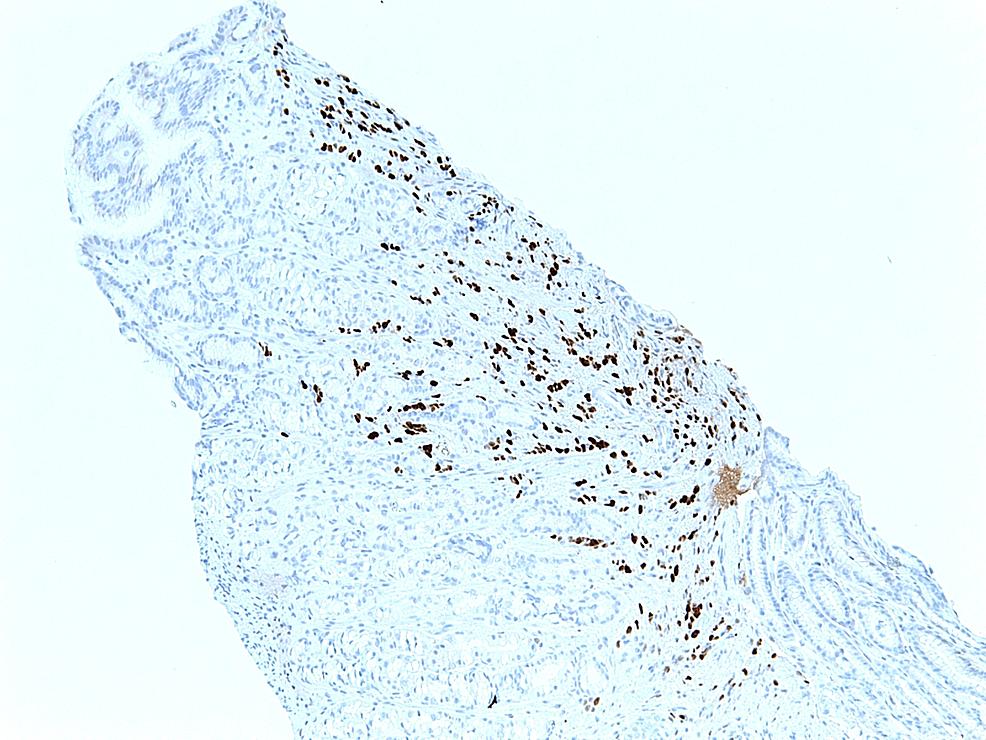 Immunohistochemical-examination-of-the-biopsy-of-the-adenocarcinoma-of-the-lobular-breast,-demonstrating-PR-positivity.-