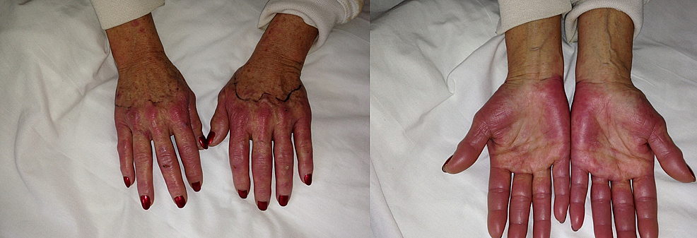 Dorsal-and-plantar-view-of-both-hands-showing-erythema-and-swelling-bilaterally.-