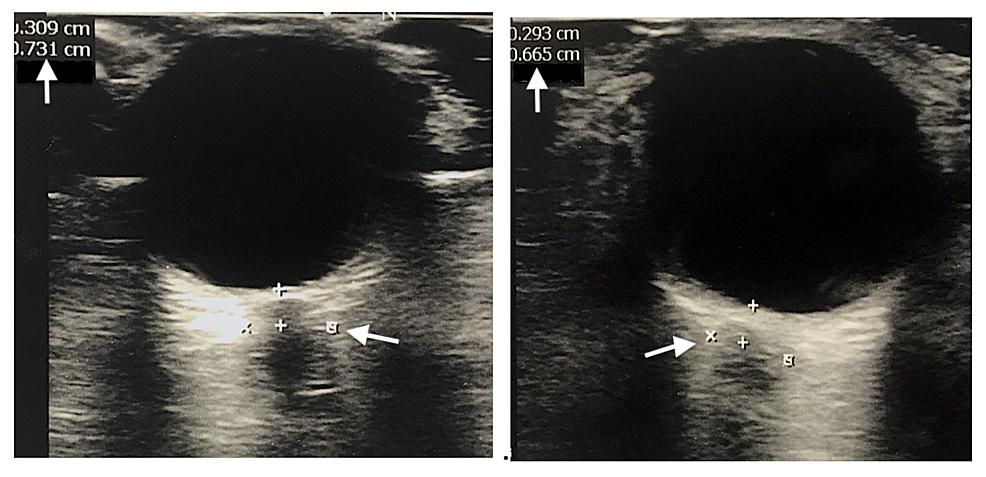 Bilateral-Intra-ocular-Ultrasound