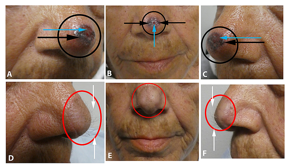 Pigmented-basal-cell-carcinoma-on-the-nasal-tip-mimicking-melanomas