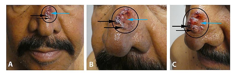 Pigmented-basal-cell-carcinoma-on-the-left-nasal-bridge-mimicking-melanoma