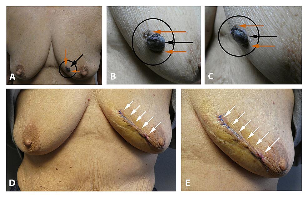 Pigmented-basal-cell-carcinoma-(with-concurrent-seborrheic-keratosis)-masquerading-as-melanoma.