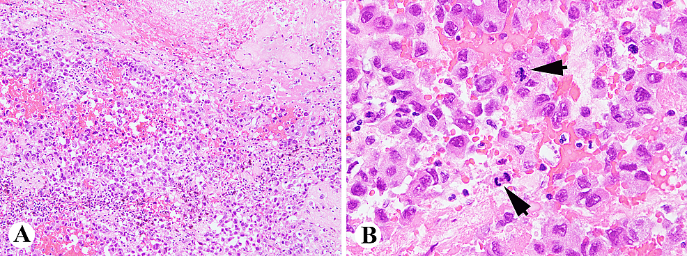 Histologically,-the-tumor-is-composed-of-atypical-epithelial-cells-with-hemorrhages,-necrosis,-and-brisk-mitotic-activity-(arrows)