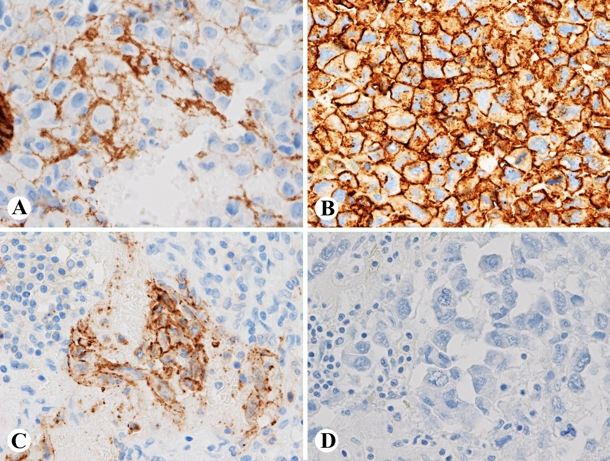 Immunostains-of-the-tumor-show-that-the-tumor-cells-are-positive-for-factor-8-(A),-CD34-(B)-and-focally-positive-for-CD31-(C),-negative-for-AE1/AE3-(D)-(A-D,-400x)