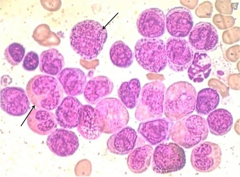 Bone-marrow-aspirate