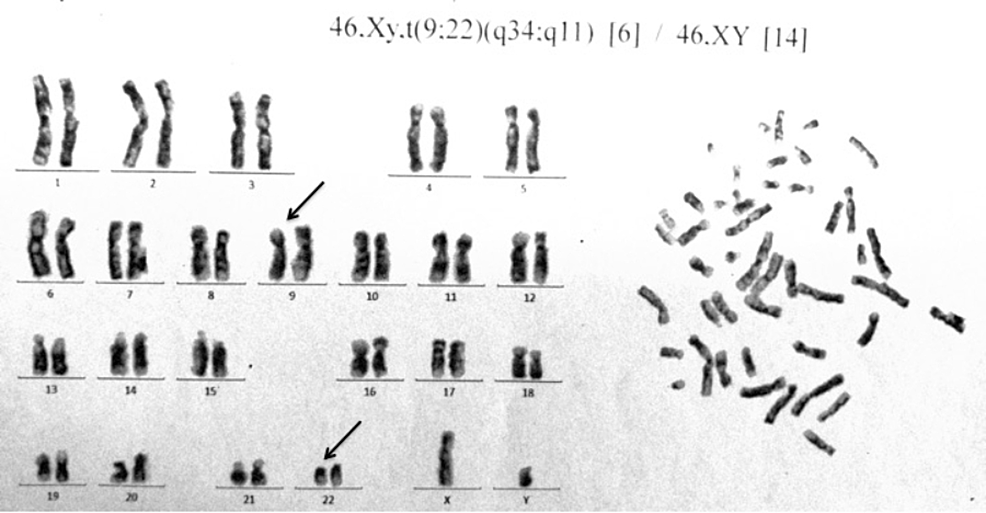 G-banded-karyotype-of-the-bone-marrow-cells-showing-t(9;22)(q34;q11).