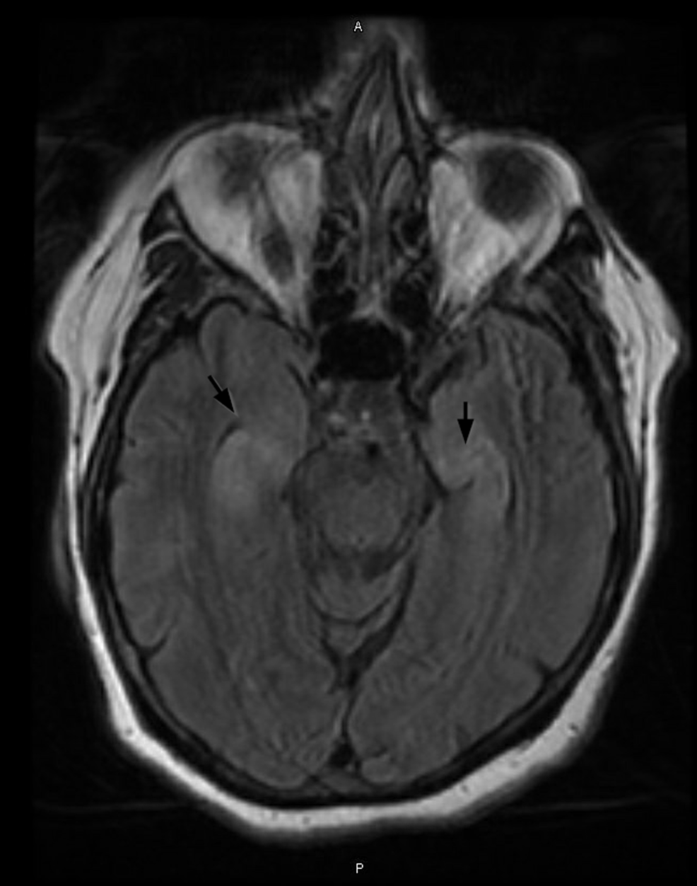 Relatively-symmetric-T2-prolongation-and-swelling-of-the-bilateral-hippocampal-structures.