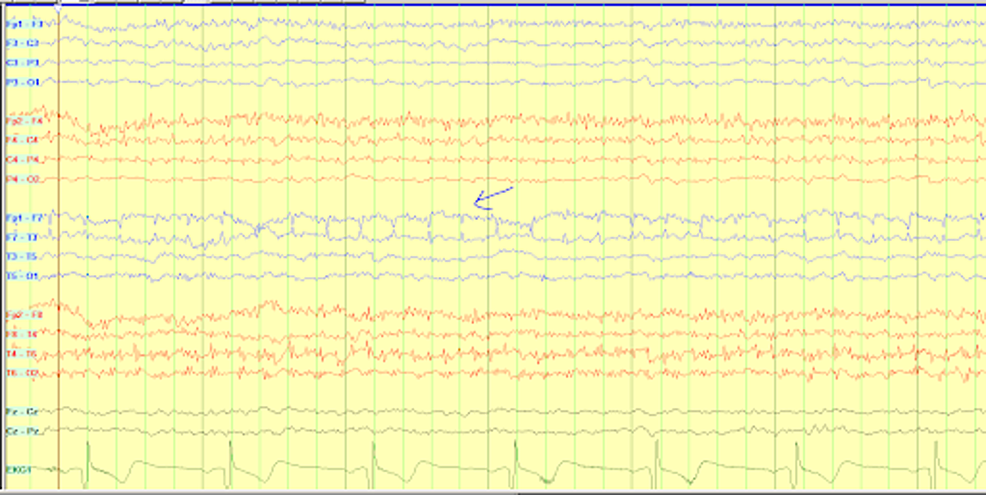 Continuous-EEG-showing-left-temporal-discharges-accentuated-in-frequency.