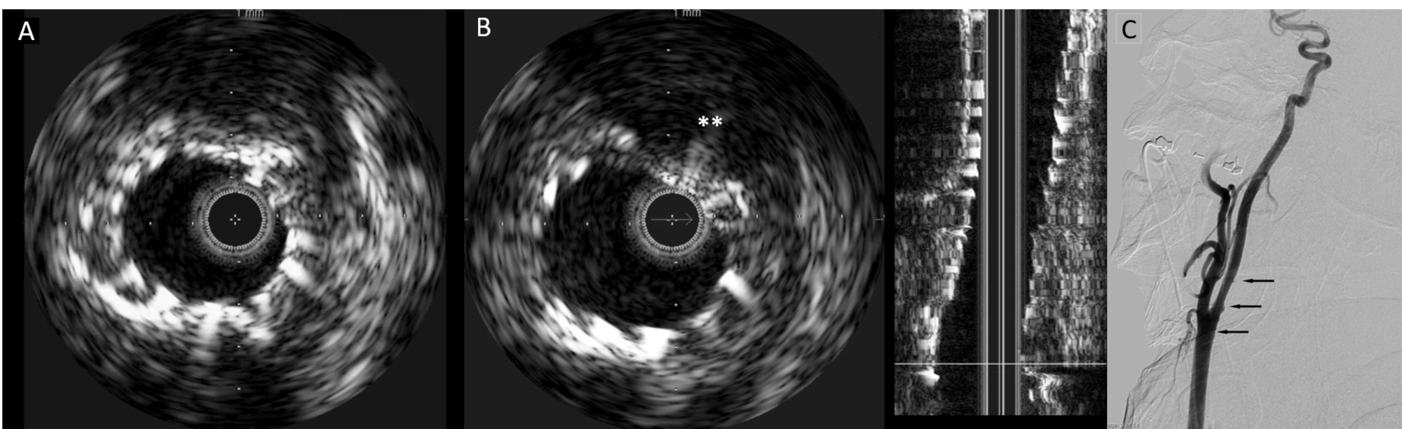 Intravascular-ultrasound-and-digital-subtraction-carotid-angiogram-of-Case-1