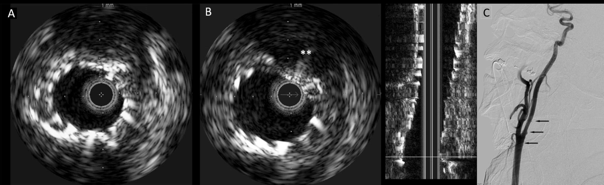 Cureus | Utility of Intravascular Ultrasound During Carotid