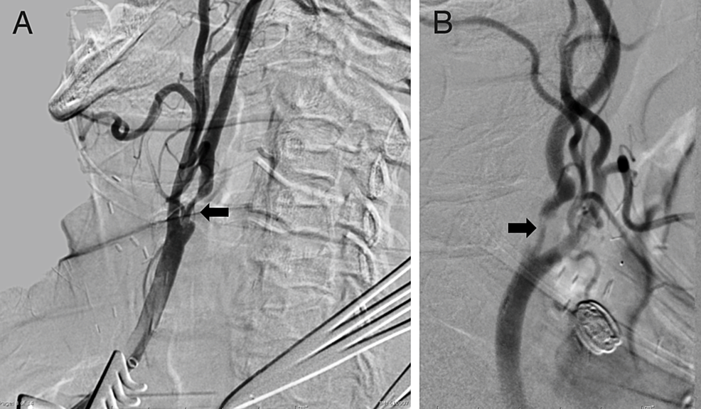 Diagnostic-lateral-and-oblique-projection-angiographic-images-of-Case-2