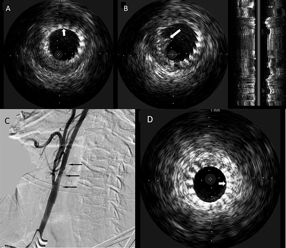 Poststenting-intravascular-ultrasound-and-digital-subtraction-carotid-angiogram-of-Case-2-