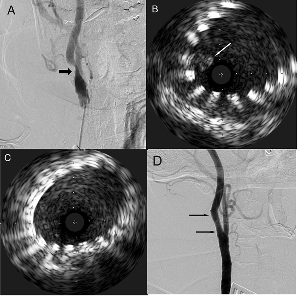 Digital-subtraction-carotid-angiogram-and-intravascular-ultrasound-(IVUS)-of-Case-3