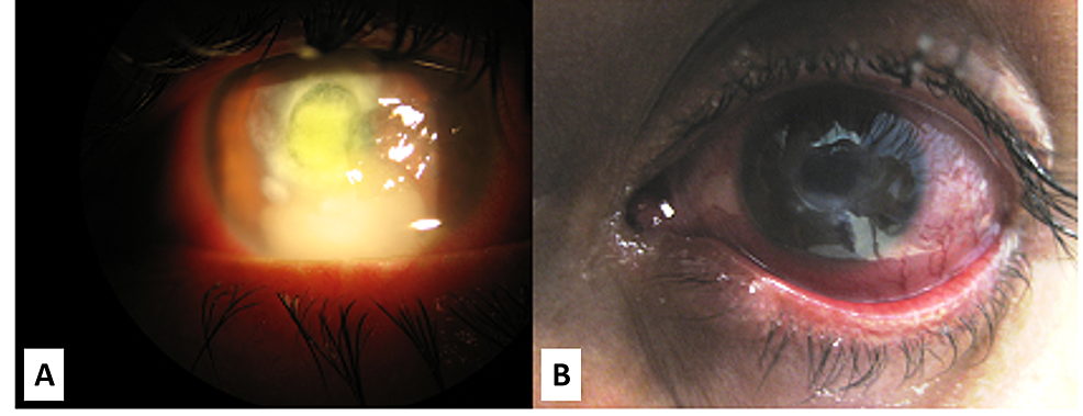 Slit-lamp-images-of-the-cornea-early-on-and-after-the-resolution-of-stromal-keratitis
