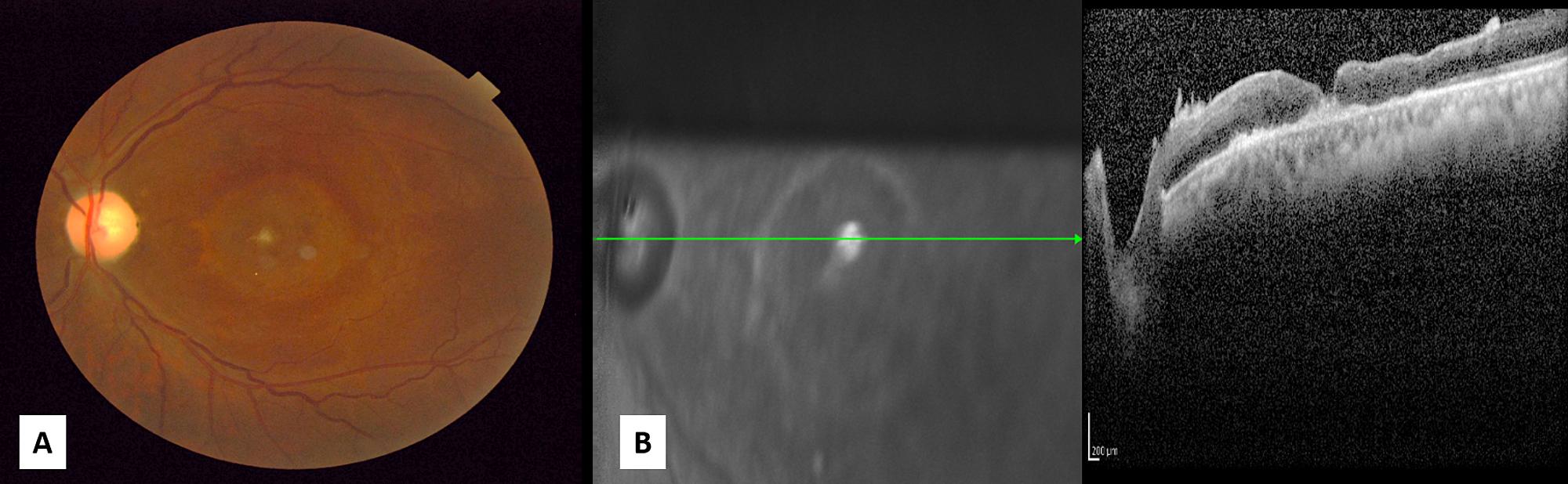 Cureus | Chronic Traumatic Giant Macular Hole Repair with